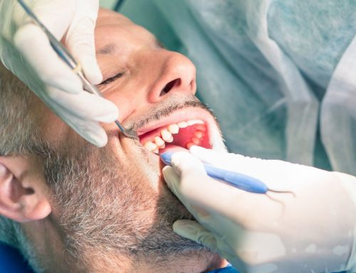 Getting to the Root of It: All About Root Canal