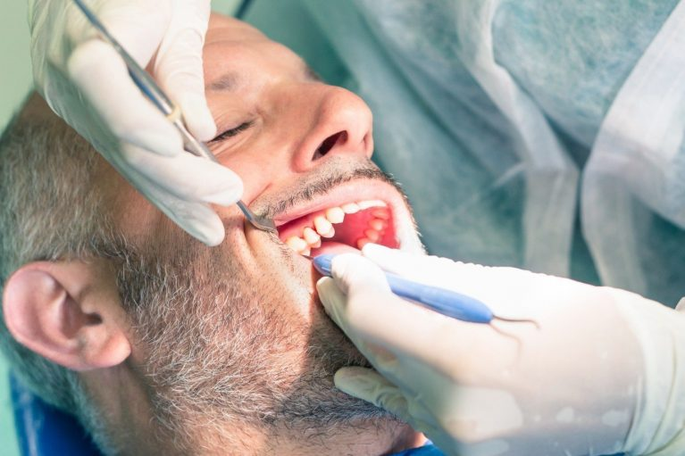 Man undergoing dental procedure up close
