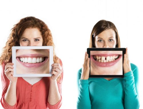 How Your Teeth Affect Your Self Esteem… And How to Improve Them